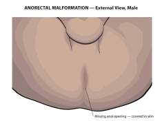 imperforate-anus-external-male