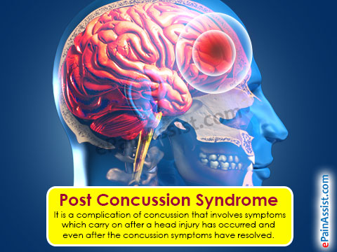 post-concussion-syndrome